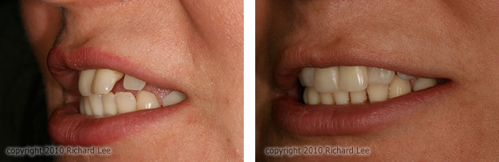 Before and after braces gaps